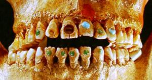 dinti-mayasi
